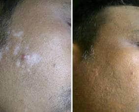 Vitiligo in a Man of 31 1