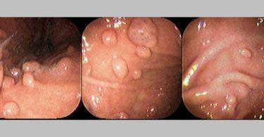 benign gastric tumors
