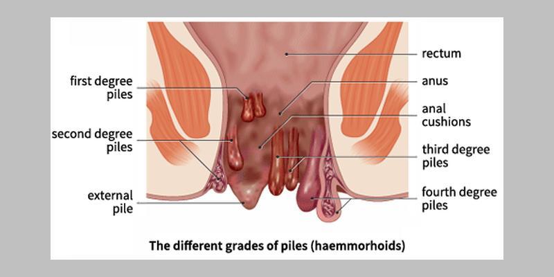 haemorrhoid grades