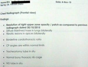 Encephalitis with Right Sided Pneumonia 9