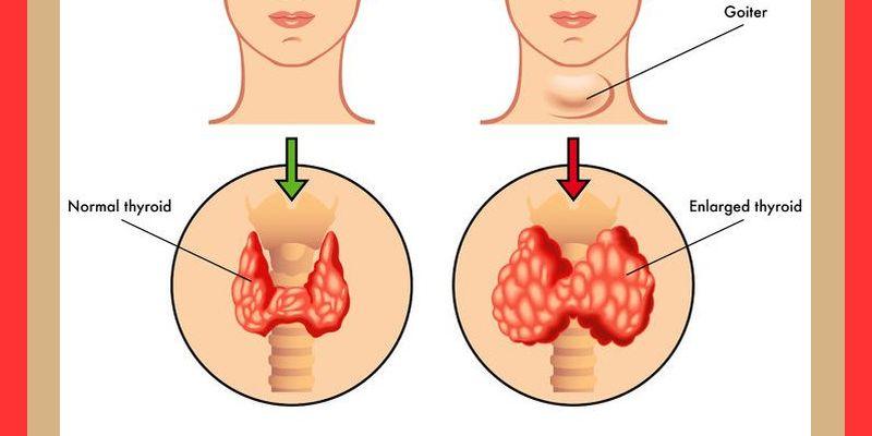 thyroid goiter e