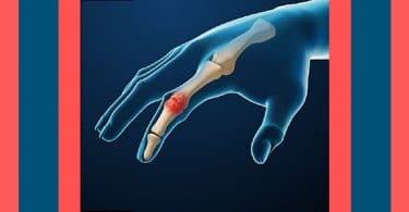 x whats rheumatoid arthritis video
