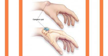 ganlion