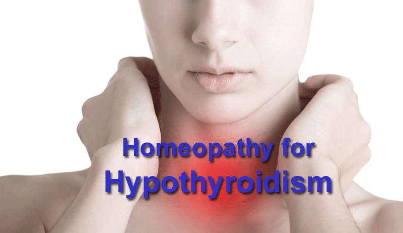 homeopathy hypothyroidism