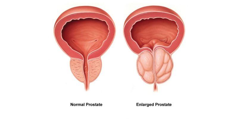 prostate bph