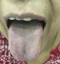 Idiopathic Thrombocytopenic Purpura 1