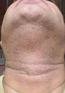 Multiple Warts in a Man of 45 2