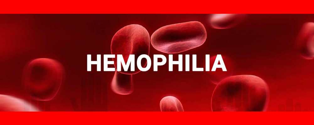 Research Studies on Haemophilia with Homeopathic Medicines Cometh the Hour, Cometh the Man