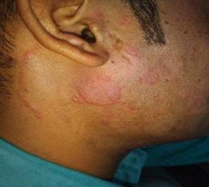 A Case of Dermatophytosis (ringworm) 3