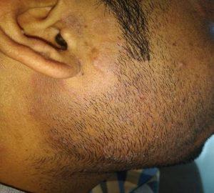 A Case of Dermatophytosis (ringworm) 4