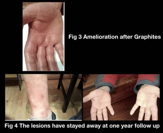 A Dramatic Case of Dyshidrotic Eczema 3