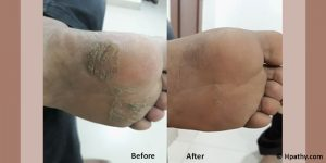 A Case of Cracks and Fissures in the Feet