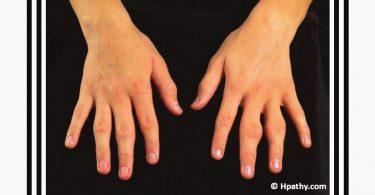 Rheumatoid Arthritis in a Woman of 34