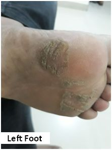 A Case of Cracks and Fissures in the Feet 5