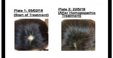 Alopecia Areata in a Woman of 32