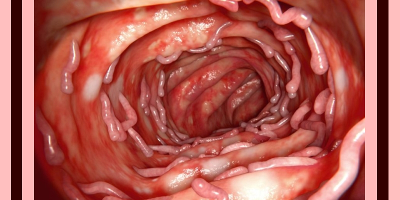 Ulcerative Colitis and its Homeopathic Approach 1