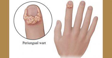 Periungual Warts in a Man of 19 9