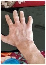 Eczema in a Man of 21 7