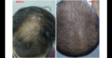 Alopecia in a Man of 19 3