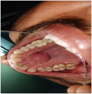 Globulomaxillary Cyst – A Case Report 3