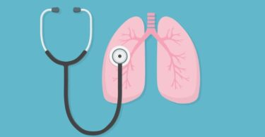 Two Small Remedies for Respiratory Distress Syndrome (ARDS) 6