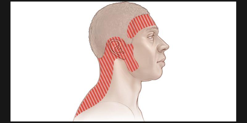 A Case of Tension Headache 1