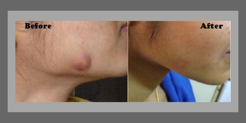 Cystic Tumor on Cheek - Female 24 1
