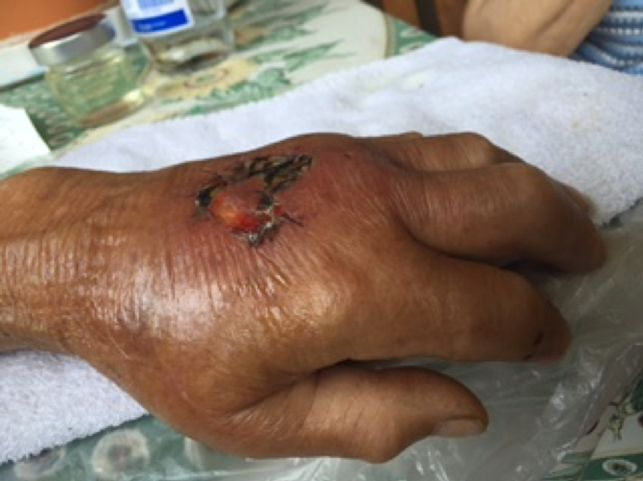 Gangrenous Ulcerated Wound After Dog Bite 5